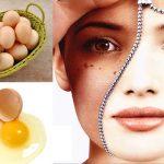 Điểm danh cách trị nám hiệu quả dành riêng cho da khô