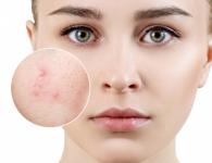 Cách làm mặt nạ yến mạch trị mụn chỉ trong 1 tuần