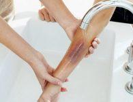 5 bước sơ cứu bỏng nhiệt đúng cách