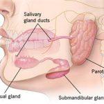 Viêm tuyến nước bọt do răng: Nguyên nhân và giải pháp điều trị