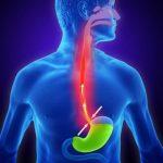 Những dấu hiệu trào ngược dạ dày bạn có thể nhận biết tại nhà