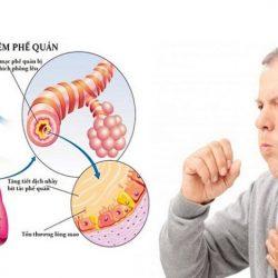 Khi bị viêm phế quản nên kiêng ăn gì?