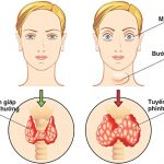 Bệnh viêm tuyến giáp là gì? Viêm tuyến giáp kiêng ăn gì?
