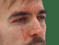 Viêm da tiết bã nhờn: Nguyên nhân và cách điều trị